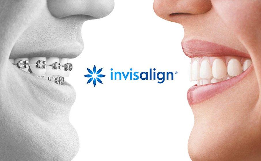 Promoció de Invisalign